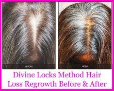 Vitamins For Hair Loss, Hair Regrowth, Locks, Hair Styles, Beautiful, Women, Hair Plait Styles, Door Latches, Hair Makeup