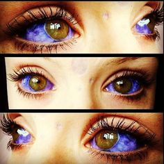 This girl's eyes are actually beautiful.