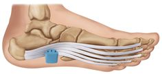 Heel That Pain is the creator of the unique and patented Heel Seats treatment for heel pain, plantar fasciitis, and heel spurs. Click to shop now, or pin it to save for later.