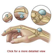 Ganglion Cysts - Wrist/Hand Lumps and Bumps