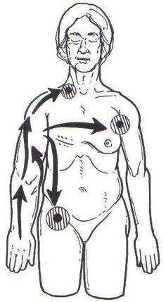 Manual lymph drainage