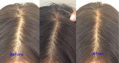 Oily Hair, Moisturize Hair, Grey Hair Treatment, Prevent Grey Hair, Grey White Hair, Gray, Light Gels, Hair Restoration, Strong Hair