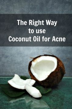 "Have you tried all sorts of medications for your acne, and nothing really worked? May be it's time to go all natural and use coconut oil for acne. Coconut oil is a ""super oil"" with an impressive prof"