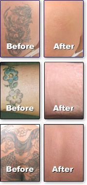 The best natural tattoo removal solution? Go to - http://tattoo-6p3qdhcw.yourreputablereviews.com #tattooremovalbeforeandafter #TemporaryTattooRemoval