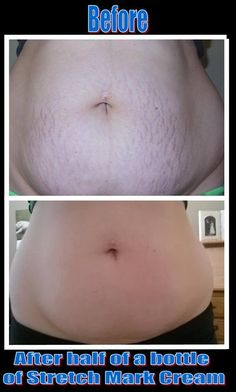 Stretch marks are scars that develop from the tearing of the dermis. When skin expands at a faster-than-normal pace and cortisone, a hormone, is produced in the system, then striae called stretch m… It Works Distributor, Become A Distributor, Stretch Mark Cream, Stretch Marks, Ultimate Body Applicator, It Works Products, Crazy Wrap Thing, Weight Loss Supplements, Face And Body