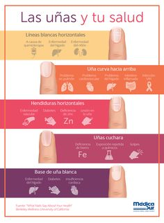 Some nail irregularities can be associated with serious medical conditions. Medicine Notes, Medicine Student, Health And Fitness Apps, Health Tips, Fingernail Health, Diy Acrylic Nails, Hospital Health, Nail Salon Decor, Work Nails