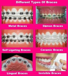 If you are planning to use dental braces then here is a great table which will help you to learn and compare among Different Types of Braces (Metal Braces, Ceramic Braces, Lingual Braces etc.), Treatment Time, Cost and various Pros and Cons of the treatments. Read more bit.ly/12U3UYT