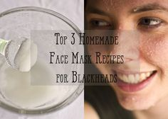 Top Three Homemade Face Scrub Recipes for Blackheads Face scrubs are one of the best homemade treatments for blackheads. Check out these homemade face scrub ideas that really clean out blackheads from the root. These are safe and cheap! Diy Face Scrub, Face Scrub Homemade, Homemade Face Masks, Homemade Skin Care, Diy Face Mask, Homemade Blush, Homemade Facials, Homemade Products, Homemade Beauty