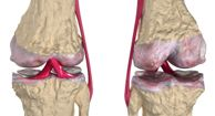 Osteoarthritis, is a degenerative joint disease that causes inflammation of the joints in the body.