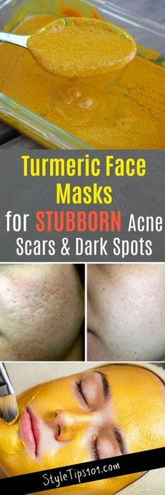 Skin Remedies Turmeric Face Masks - These turmeric face masks serve to cure a multitude of problems including acne, but focus more on eradicating stubborn acne scars and dark spots. Turmeric Face Mask Acne, Tumeric Masks, Acne Face Mask, Homemade Face Masks, Homemade Skin Care, Beauty Care, Beauty Skin, Beauty Hacks, Diy Beauty