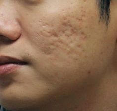 Homeopathic Treatment For Acne Scars