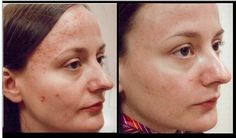 Photo Dynamic Therapy for #Acne really works #beautyinthebag