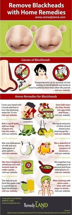 Use the natural blackhead home remedies for every day skin care to prevent and remove blackheads.