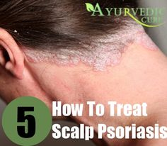 Penile Psoriasis Natural Treatment
