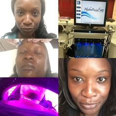 Beauty Blogger Where Did You Buy That?: It's all about the Hydrafacial #HydraFacial #BeautyBlogger #Skincare #Beauty