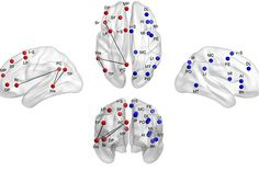 Cognition and behavior: Brain symmetry atypical in autism — SFARI.org - Simons Foundation Autism Research Initiative