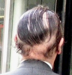 Used generic Rogaine** This particular comb-over takes over Donald Trump's #1 position.