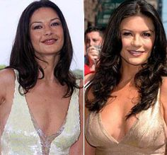 Catherine Zeta-Jones herself either denies or agrees the rumor she has had plastic surgery procedure. But even the rumor plastic surgery probably true, Catherine Zeta-Jones seems got so much advantages from it.