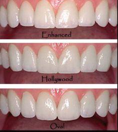 Digital Smile Design By Best Cosmetic Dentist In Beverly Hills - Dr. J - Digital Smile Design Dental Aesthetics, Facial Aesthetics, Veneers Teeth, Dental Veneers, Smile Teeth, Teeth Care, Dental Surgery, Dental Implants, Beautiful Teeth