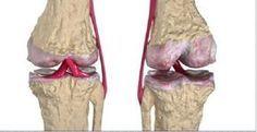 Osteoartrite é um problema nas articulações, o que envolve osso subcondral, ligamentos, cápsula articular, membrana sinovial e músculos pariarticulares.