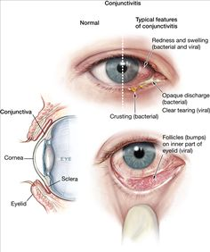 Treatment of Conjunctivitis in India by expert Ayurvedic Team of Doctors in the most permanent way...