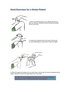 pictures of exercises for stroke patients | Hand Exercises for a Stroke Patient