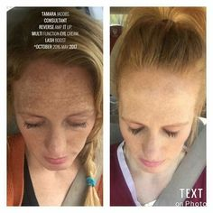 """Consultant Tamara Jacobs had this to say today  about her personal results with R+F.  """"Sometimes people are frustrated when they've been using their products faithfully for a few weeks, and don't see much difference. I am here to tell all y'all that it can take time.  Consistency and time!   I started using R+F just over 7 months ago, and I can't believe the difference when I put these pictures side by side today.  I LOVE these products so much❤""""  80% of your skin's destiny is up to you…"""