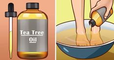 Tea tree oil or melaleuca is famous for its antiseptic properties. It can also treat wounds and minor injuries. It is derived from Melaleuca alternifolia, an Australian native plant which has been wid Tea Tree Essential Oil, Essential Oils, Oils For Dandruff, Skin Breaking Out, Tea Tree Oil For Acne, Fungal Nail Infection, Cream Nails, Oil Uses, Diy Cleaning Products