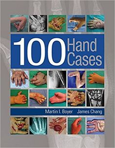 100 Hand Cases 1st Edition