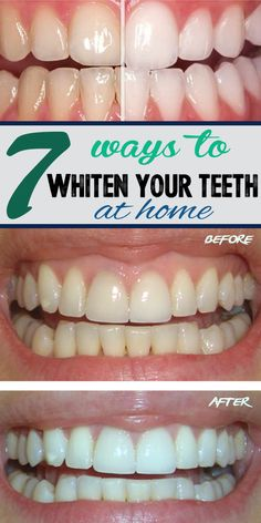 Natural Teeth Whitening Remedies ways to whiten your teeth at home - If you don't want to whiten your teeth to a dental office, here are a few natural methods for a brighter smile. Teeth Whitening Methods, Teeth Whitening That Works, Natural Teeth Whitening, Teath Whitening, Beauty Hacks Eyelashes, Everyday Beauty Routine, Homemade Toothpaste, Perfect Food, Skin Care Tips