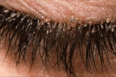 About half of the adults have mites in their eyelashes, claims a study in the Journal of Medical Entomology. They are called eyelash mites and live in the sebaceous glands that are connected to the hair follicles, in our eyelashes and eyebrows. Big Lashes, Eyelashes, Eyebrows, Redness In Eye, Blemish Remover, Beauty Lash, Itchy Eyes, Jojoba, Skin Care Regimen