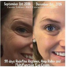 If you are ever skeptical about Rodan + Fields Before and Afters, and what these products really achieve, do yourself a favor and check out these 90 day results from a real person. With a  60 day money back guarantee,  what do you have to lose? Make this year a new you!  This is the signature Redefine regimen....after 90 days!