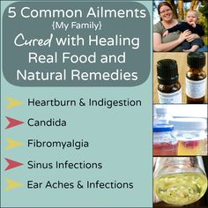 5 Common Ailments My Family Cured with Healing Real Food and Natural Remedies naturalfamilytoday.com