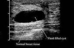 examen de ultrasonido de próstata ancona youtube