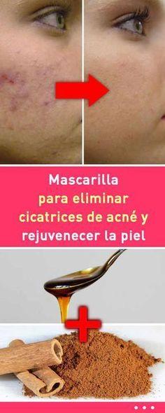 Mascarilla para eliminar cicatrices de acné y rejuvenecer la piel #mascarilla #eliminar #cicatrices #acné #rejuvenecer #piel #rostro