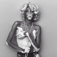 Art Comes First: Winnie Harlow aka Chantelle Brown Winnie Harlow, Chantelle Brown Young, Black Is Beautiful, Image Beautiful, Pretty People, Beautiful People, Beautiful Women, Real People, Vitiligo Treatment