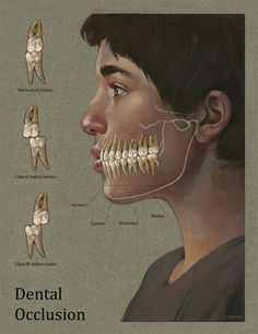 Normal Class I occlusion, Class II malocclusion, & Class III malocclusion. Angle's Classification of Malocclusion. Dentaltown Orthodontics http://www.dentaltown.com/MessageBoard/thread.aspx?s=2&f=135&t=251641&pg=1&r=3976624&v=0.   A classification of different types of malocclusion, based on the mesiodistal relationship of the permanent molars upon their eruption and locking.