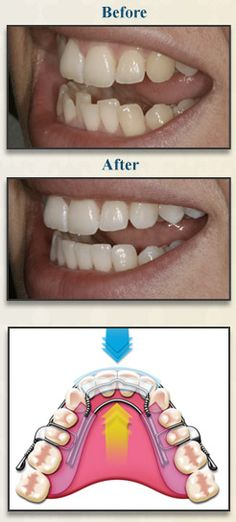 A Conservative Alternative for Adult Orthodontics Did you have braces as a kid, and over the years, your teeth have shifted out of their corrected positioning? Or maybe you never had them, and would love to have your front teeth straightened but dread the idea of long-term orthodontics or invasive cosmetic dentistry.