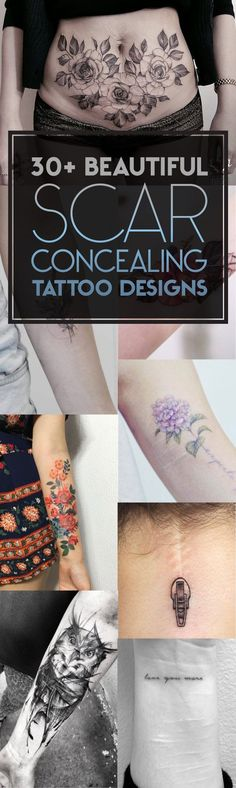 30+ Beautiful Scar-Concealing Tattoo Designs | TattooBlend