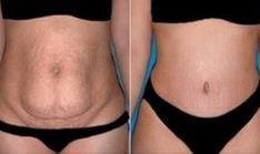 Nápoj je vyrobený zo špenátu, citrónu a zázvoru, ktoré môžu urýchliť proces spaľovania tukov. Budú tiež stimulovať produkciu karnitín, ktorý zmení tuky na energiu v tele, takže šťava môže tiež pomôcť v prípade obezity alebo Belly Fat Burner, Burn Belly Fat, Tummy Tuck Surgery, Metabolic Diet, Metabolic Disorders, Abdominal Fat, Stubborn Belly Fat, Tummy Tucks, Loose Weight