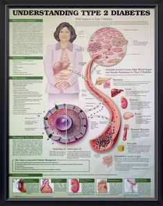 Type 2 Diabetes (3E) anatomy poster includes 5 Keys to Successful Diabetes Management, showing glucose molecules and cellular pancreas. Endocrinology chart for doctors and nurses. November is American Diabetes Awareness Month. #clinicalposters