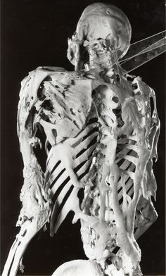Fibrodysplasia ossificans progressiva (FOP), sometimes referred to as Stone Man Syndrome, is an extremely rare disease of the connective tissue. A mutation of the body's repair mechanism causes fibrous tissue (including muscle, tendon, and ligament) to be ossified when damaged