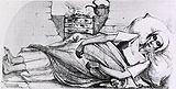 """Blue Stage of the spasmodic cholera. Sketch of a Girl who died of cholera, in Sunderland, November, 1831. Artist unknown. Illustrated In: Lancet (1831-32): """"History of...the...cholera in England and Scotland."""". Image A012673 from Images from the History of Medicine (IHM)."""