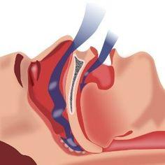 Herbal Remedies For the Treatment of Sleep Apnea