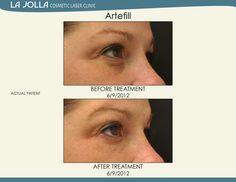Patient treated with Artefill at La Jolla Cosmetic Laser Clinic. Under Eye Fillers, Under Eye Makeup, Laser Clinics, Fountain Of Youth, La Jolla, Skin Care Tips, Your Skin, Eyes Care, Cosmetics