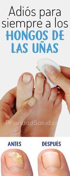 como quitar hongos de las uñas de los pies