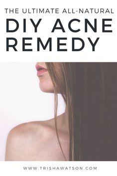 Acne Remedies A DIY organic remedy for fighting acne prone skin / Cystic Acne Remedies, Cystic Acne Treatment, Home Remedies For Acne, Skin Care Remedies, Natural Remedies, Herbal Remedies, Organic Skin Care, Natural Skin Care, Organic Beauty