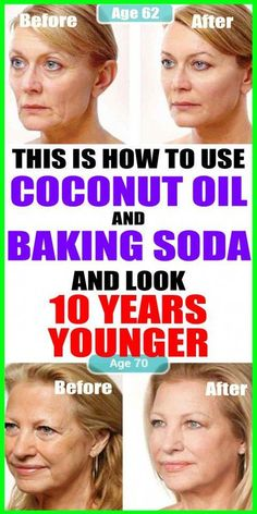 This Is How To Use Coconut Oil And Baking Soda To Look 10 Years Younger beauty 713187290976597727 Beauty Care, Beauty Skin, Health And Beauty, Beauty Hacks, Diy Beauty, Star Beauty, Face Beauty, Beauty Ideas, Beauty Secrets