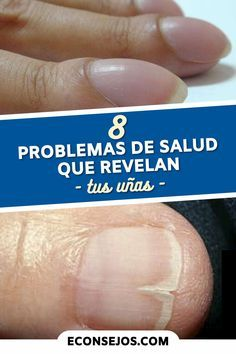 Nail Disorders, Fingernail Health, Red Acrylic Nails, Strong Nails, Good Health Tips, Homemade Beauty Products, Diy Crafts To Sell, Health Remedies, Hair And Nails