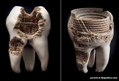 Tooth_with_Ancient_Ruins_1.jpg (560×384)